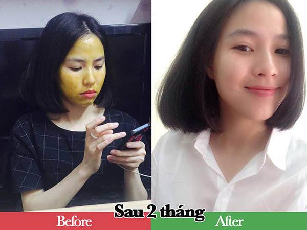 review-kem-gao-tinh-nghe-mat-ong-doc-moc