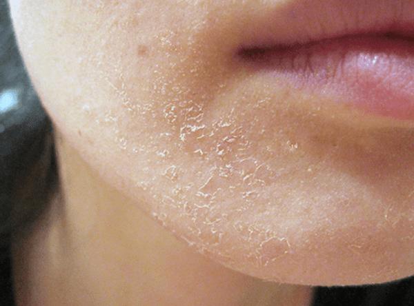 Nguyên nhân da mặt khô
