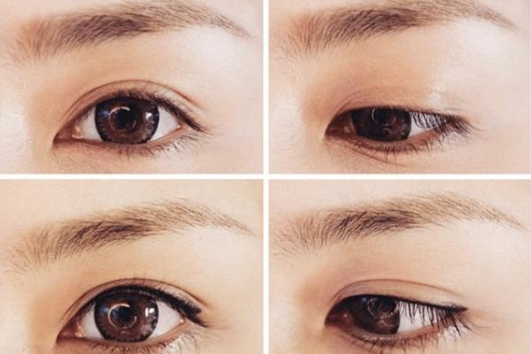 Phun mí mắt là gì?