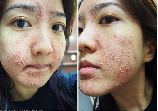 Tác hại của kem trộn đến làn da