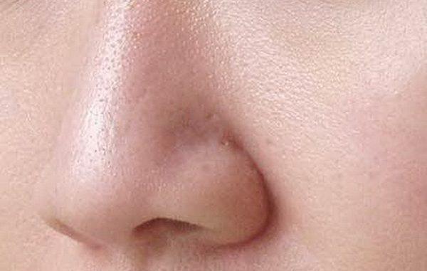 Lỗ chân lông là một bộ phận của da chứa các nang lông